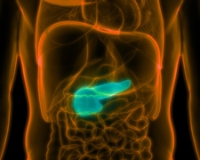 Pancreatic Cancer: Symptoms & Prevention